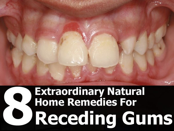 Natural Cures For Dog Gum Disease
